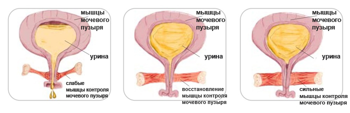 Тренировкой мышц вагины вум вагинальное управляемые мышцы могу